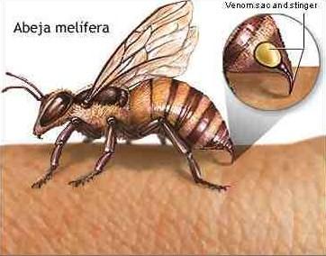 Picaduras de abejas melíferas